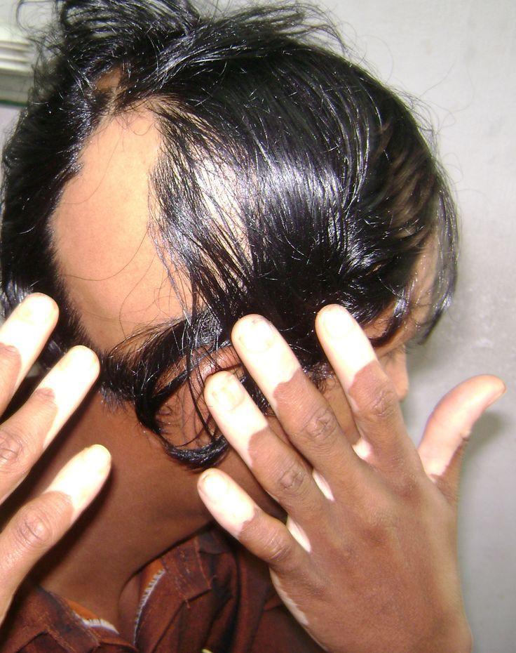 #alopeciaareata #alopeciawhy #alopeciatreatment #alopeciawig #alopeciasewin #alopeciaareatanaturaltreatment #alopeciatreatmentformen #alopeciacure #alopeciaareatatreatment #alopeciaareatastory #argan #arganrain #arganrainshampoo #arganrainproduct #arganrainsulfatefreeshampoo