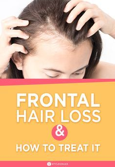 What Is Frontal Hair Loss And How To Treat It? This problem is generally known to occur due hormonal changes or auto immune response generated in the body. This undesirable issue can however be treated and slowed down through medical, clinical and therapeutic procedures, therapies and treatments. A healthy lifestyle and proper diet is also essential to combat this hair loss issue. #HairLoss #Haircare #Hair