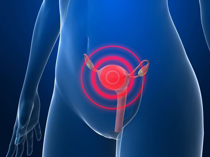 Just 20% of Hysterectomies for Pelvic Pain Find Endometriosis