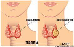 Os nódulos da tireoide são lesões arrendondas, que surgem no tecido da tireoide, podendo ser causadas por várias condições, a maioria delas benigna.