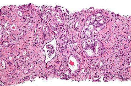 Combined chemotherapy and immunotherapy shows promise for advanced prostate cancers  http://medicalxpress.com/news/2015-04-combined-chemotherapy-immunotherapy-advanced-prostate.html