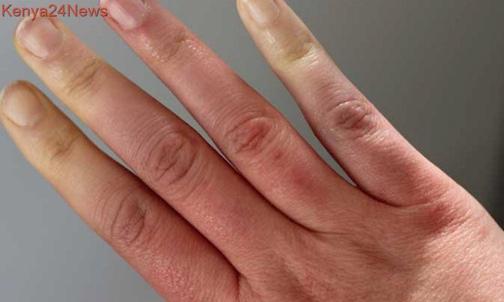 Can Raynaud S Syndrome Also Cause Nails To Turn Black In 2020 Raynauds Syndrome Cold Fingers