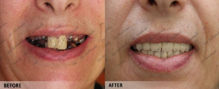 #Dr.Motiwala arise with the new technique of #permanent teeth within three days with out sinus lift and bone grafting with existence time assurance can alternate your lifestyles Before and After photos of full mouth rehabilitation case performed by #Dr.Motiwala. http://full-mouth-dental-implants.com/full_mouth_dental_imp