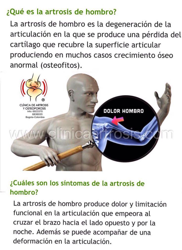 Tratamientos contra la artrosis de hombros #clinicaartrosis Clínica de Artrosis y Osteoporosis en Bogota www.clinicaartrosis.com PBX: 6836020.