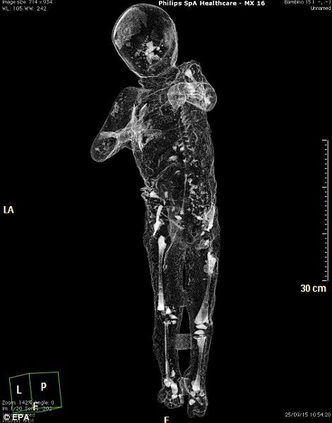 They have now released the first results of these scans to show what lies beneath the plaster and casings of the people frozen in time (pictured)