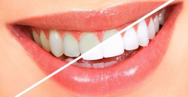 Φυσική λεύκανση των δοντιών με ένα βότανο-έκπληξη!!!
