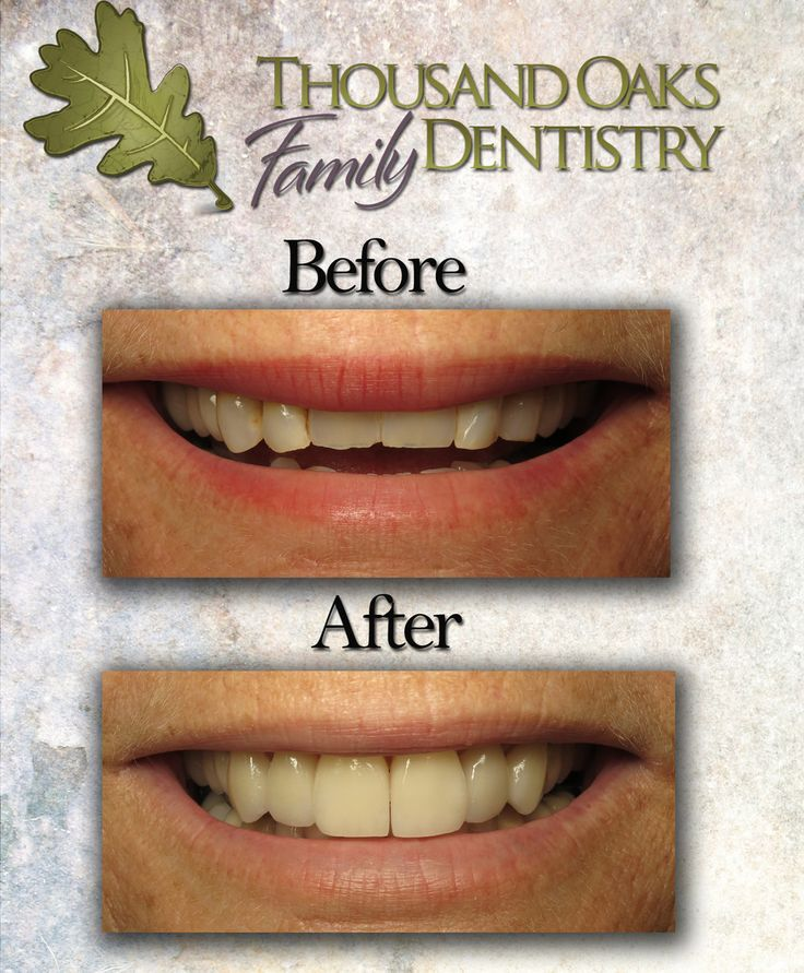 Thousand Oaks Family Dentistry Published by Dean Gretzinger Page Liked · 2 mins ·    Another beautiful #veneer transformation! By lengthening this patient's front teeth we created a full, youthful smile. Take a look! #ThousandOaksDentist
