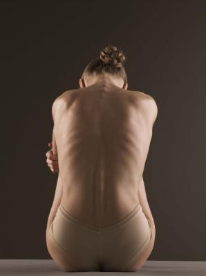 Exercises for Sciatica in the Lower Back and Down the Leg