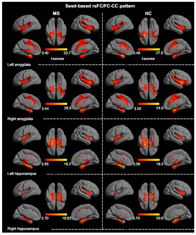 Figure S1 Statistical significance (color-coded t-score) of the rsFC patterns for the amygdala and hippocampus in both the HC and the RR MS groups.