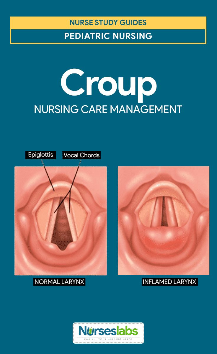 Croup Syndrome