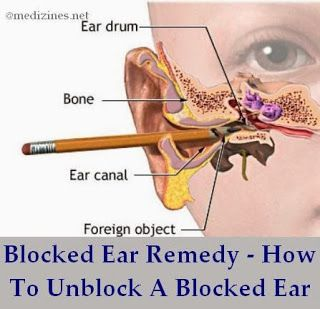 how to clear blocked sinuses and ears