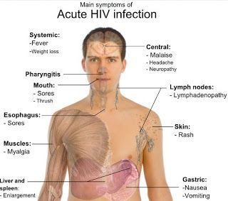 HIV & AIDS Symptoms in Men – 5 Signs to Notice and to Tell if You are Infected HIV?
