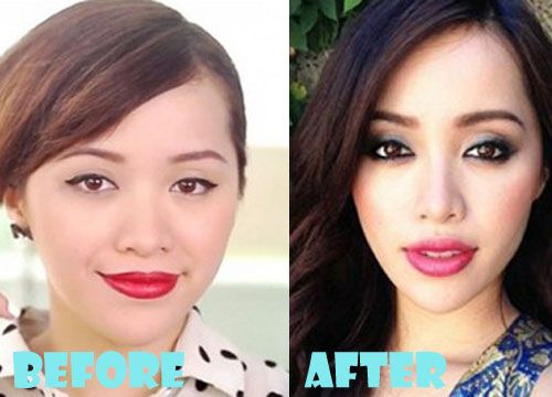 Michelle Phan Plastic Surgery Before and After Pictures
