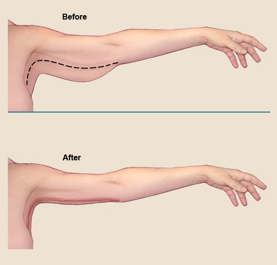 An arm lift (brachioplasty) is a cosmetic surgery procedure to remove fat and/or sagging skin under the upper arm to create a firmer toned appearance.