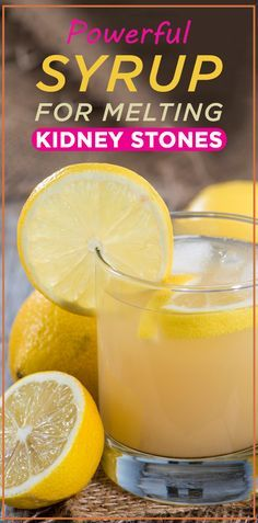 Powerful Syrup For Melting Kidney Stones- evoo, lemon essential oil, lemon juice and water! 3x a day to prevent and pass kidney stones