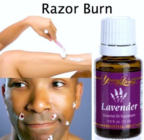 Razor Burn Essential Oils For Health Amp Home Pinterest