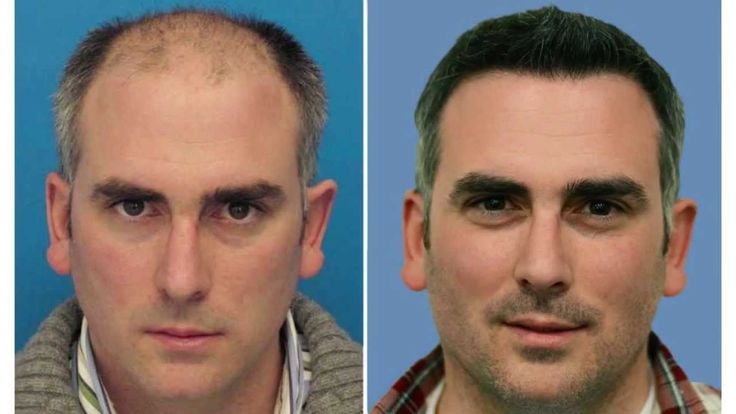 #Hairtransplant surgical treatment has gone through a recent transformation. Older, very first generation hair implants led to scarring, inconsistent outcomes, and an abnormal appearance. Ingenious hair transplants by Hasson & Wong, integrate shown techniques that reduce marking, increase graft progression, and attain natural results.