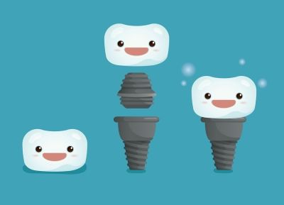 [For those who need more than one tooth: dental implants] -------------------------------------------------------------------------- 🔖🏥The outstanding advantage of dental implantation, besides providing aesthetic appearance, and being a quick and easy solution, is that it can be done even with complete tooth loss.🍉👨 #dentalimplant #dentistry #dentalclinic #cvitaminclinic #szeged #hungary
