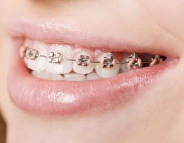 Braces prove a way to help with bad breath. Totally true. Quick post explaining it.