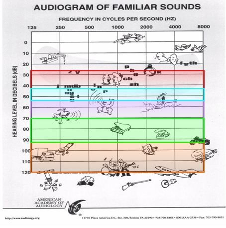 10 Best Audiogram Info Images On Pinterest Speech