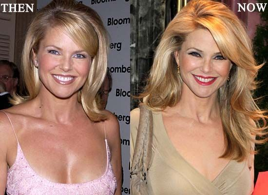 christie brinkley  #celebrity #surgery