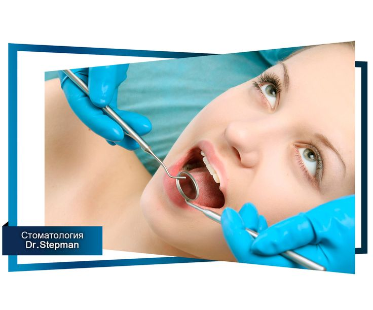 Симптомы и лечение перикоронарита. Часть 2. #полезное #статья #зубы #стоматология  Смотри все части статей по этому хэштегу 📌#лечениеперикоронарита  Симптомы перикоронарита  1) Болевые ощущения в области десны, под которой прорезается зуб. Отмечается усиление боли при жевании пищи, а также при глотании. Часто боли отдают в область виска или уха. 2) Увеличение поднижнечелюстных лимфатических узлов, а также незначительное повышение температуры тела до 37,0–37,5 градусов. 3) Ограничение…