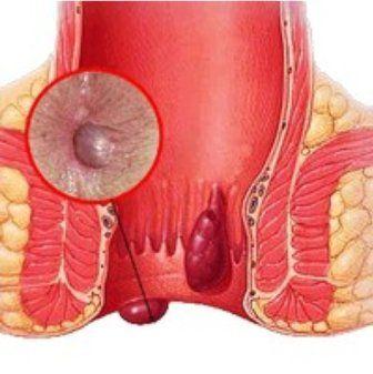 Профилактика и лечение геморроидальных шишек