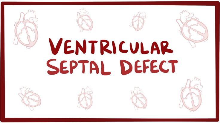 Ventricular septal defect (VSD) - repair, causes, symptoms & pathology