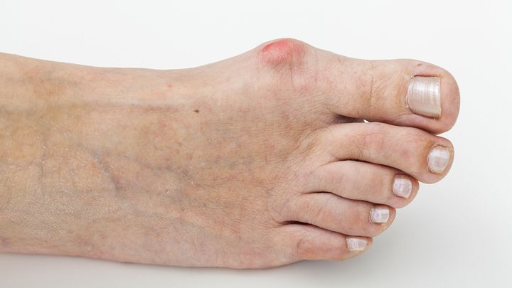 How To Remove Glass From Foot Naturally
