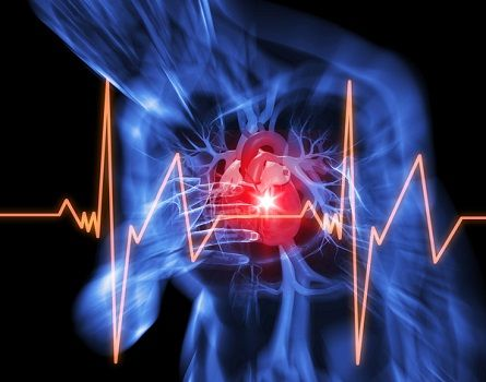 Learn About Symptoms of a Heart Attack!  The most common symptoms of heart attacks are:  * Pain in the mid-chest, especially that radiates up to the jaw or  down the left arm towards the hand.  * Tightness in the chest, like a belt is tied around your upper ribs.  * Heaviness in the chest, like someone standing on you.   * Shortness of breath.  * Heavy sweating.  * Heart palpitations   * Fast or uneven pulse.