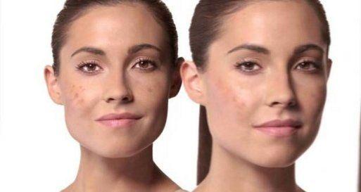 Tratamientos caseros para combatir manchas de la piel