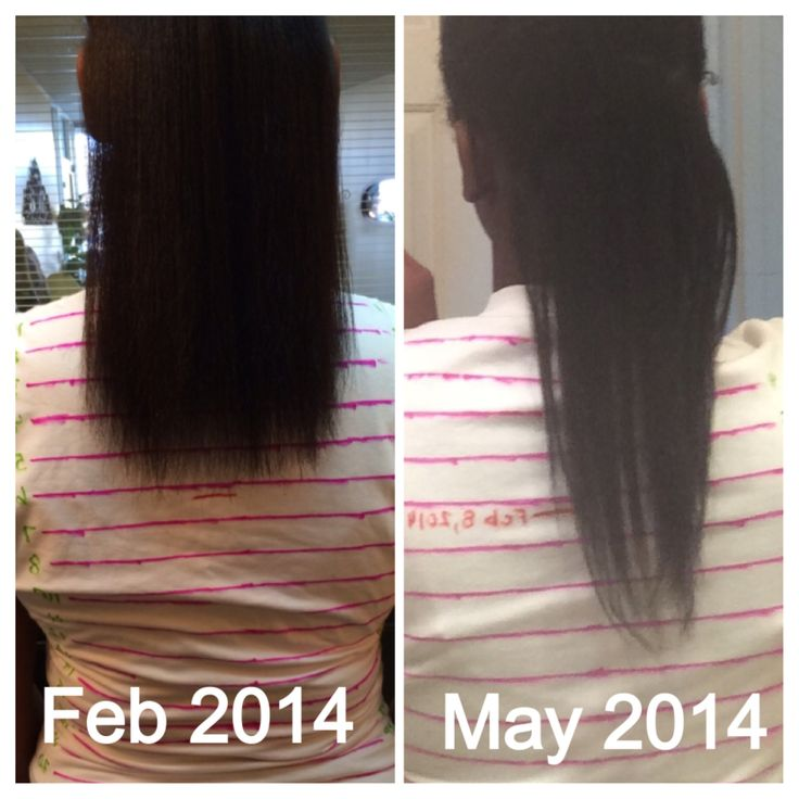 hairfinity results hairfinity hairfinity before and after hairfinity