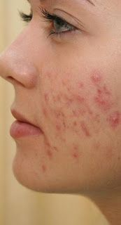 3 Guaranteed Ways To Get Rid Of Acne Extremely Fast! - Eve's Special