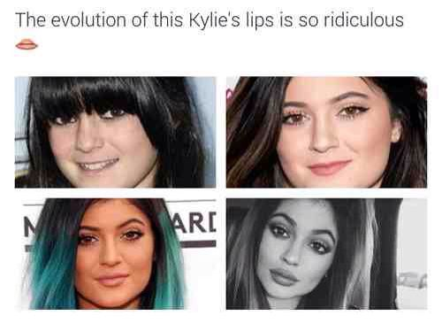 It really is, she didn't need to do all that. She was flawless before the injections. Smh, this is why girls don't feel beautiful in there own skin.