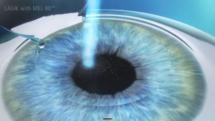 Cirugía ocular