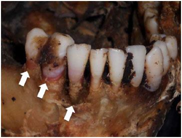 The post mortem pink tooth is a common finding related to cases of asphyxia, such as strangulation, drowning or suffocation (Institute of Forensic Medicine, Cordoba, Argentina).