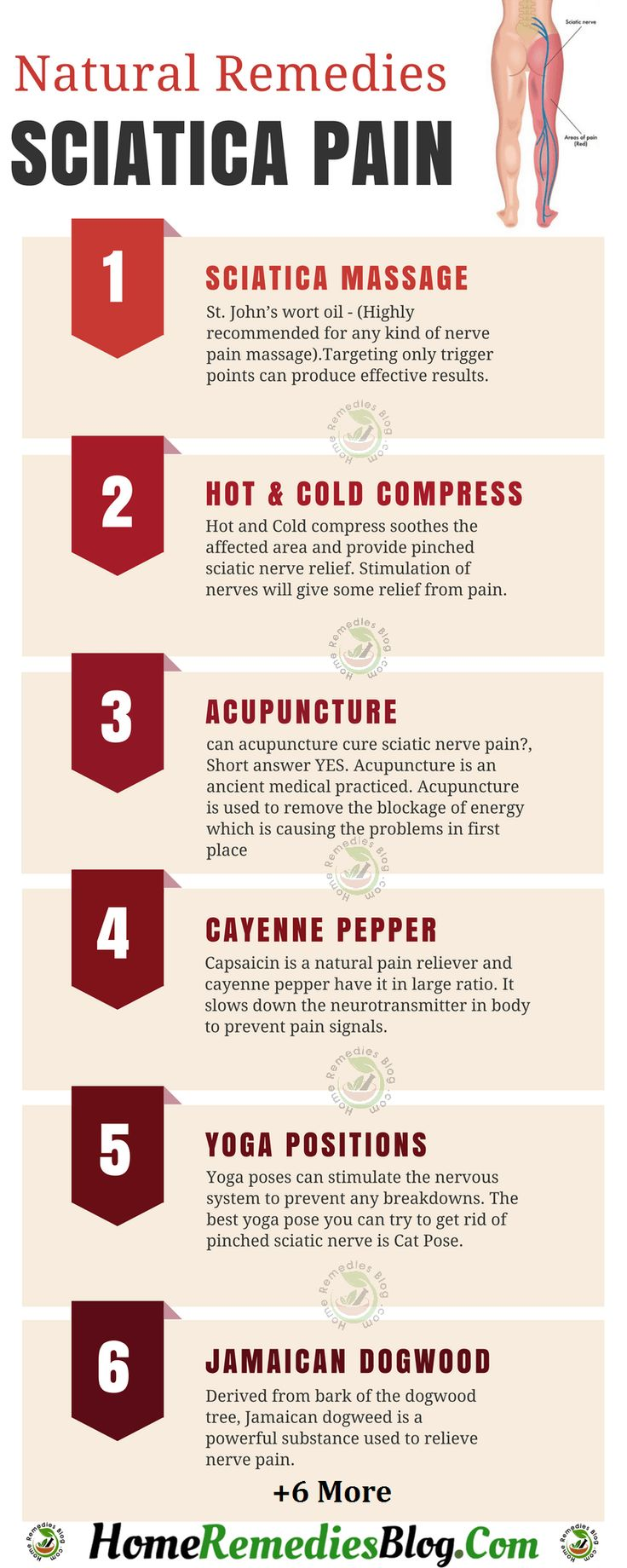 Colour therapy for sciatica - Best Natural Remedies For Sciatic Nerve Pain Relief Infographics