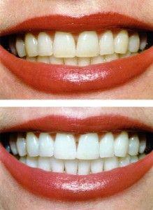 Tannhelse | Tannlege Oslo gir tips om tannhelse