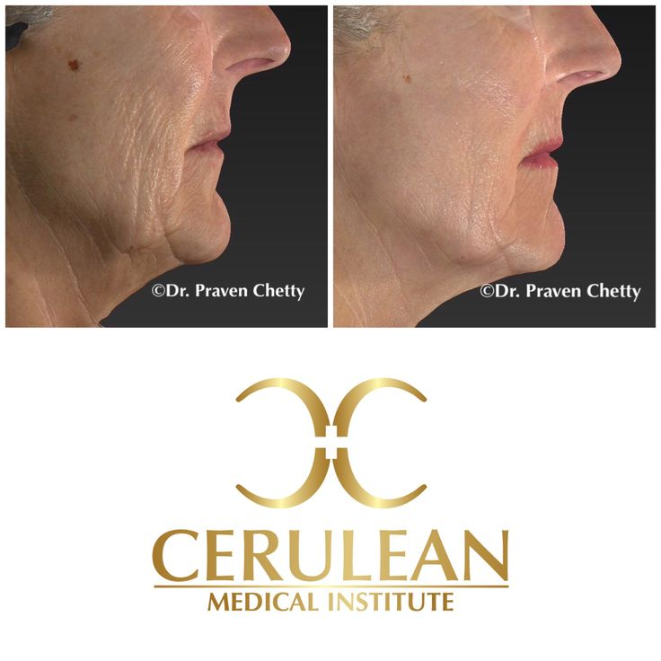 Chemical Peels for  a Radiant Glow 2 weeks post treatment.  #ThrowbackThursday #Wellness #Youthful #Glow #AntiAging #NonSurgical #BeforeAndAfter #ChemicalPeels #Wrinkles #Cosmetic #Dermatology #DrPravenChetty #CeruleanMedicalInstitute #Beautiful #Kelowna #Okanagan #YLW