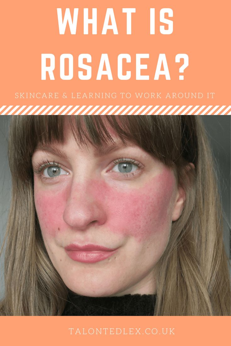 94 best rosacea articles reviews and infographics images. Black Bedroom Furniture Sets. Home Design Ideas