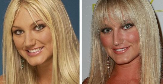 Brooke Hogan Nose Job