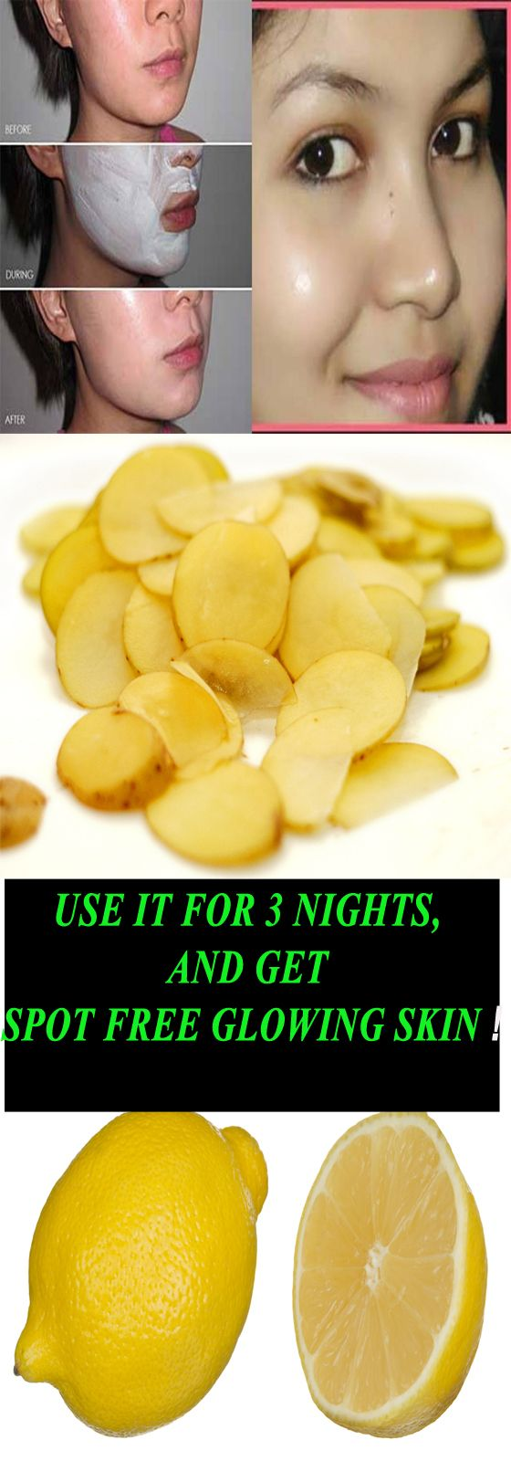 Use this for 3 nights and get spot free, glowing skin.