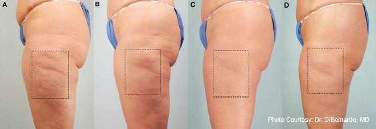 Cellulite Remedy using Lemon + Orange