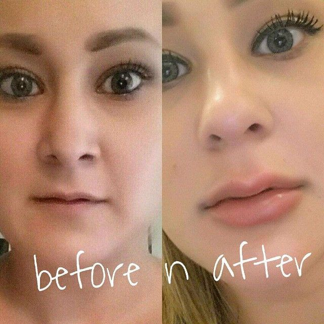 Before and after picture of syringe of juvederm to the for Lip tattoo fade