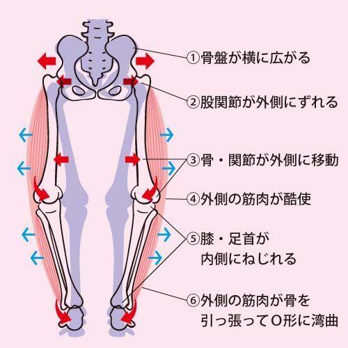 骨盤矯正 | O脚治し方ガイド