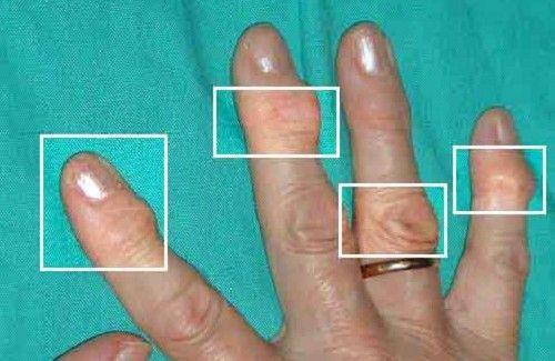 Remèdes naturels pour traiter l'arthrite - Améliore ta Santé