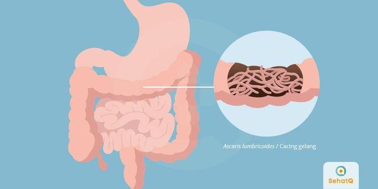 Askariasis Adalah Infeksi Cacing Gelang Atau Ascaris Lumbricoides Yang Terjadi Di Dalam Usus Manusia Penyakit Ini Banya Sistem Limfatik Manusia Mencuci Tangan