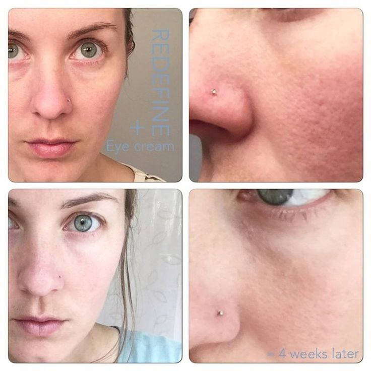 I'm seriously running out of ways to tell you how FANTASTIC Rodan + Fields Is! And the Amazing Results keep rolling in!