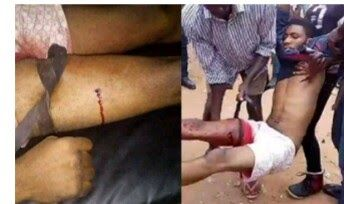 UMUAHIA  SCORES of youths were allegedly injured yesterday as gunmen suspected to be soldiers who came in Hilux Pick-up vans allegedly attacked the Umuahia country home of leader of Indigenous People of Biafra IPOB Mazi Nnamdi Kanu.One of the persons allegedly wounded by uniformed men at Leader of IPOB Nnamdi Kanus home in Umuahia yesterday. The IPOB claimed last night that five people were killed and about 30 others were injured in the attack. However videos of the clash showing clubs and…