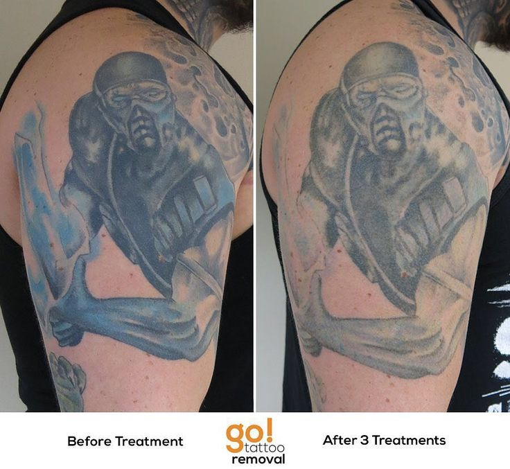 900 best tattoo removal in progress images on pinterest for Tattoo removal healing